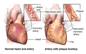 Front view of the heart with comparing a healthy artery vs. an artery with plaque buildup.