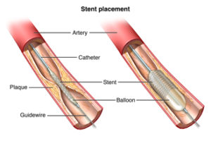 Anterior view of blood vessel artery with atherosclerosis. A balloon stent catheter inserted at blockage.