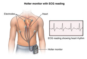 Anterior view male figure torso with holter monitor and ecg/heart rhythm inset